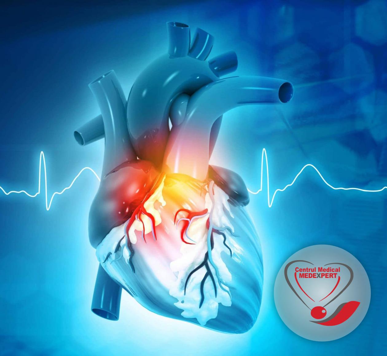 Serviciu nou: Cardiologie