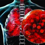 Recuperare prin ozonoterapie